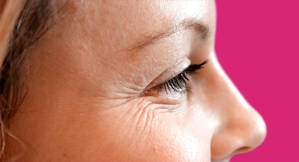 5 Tricks to Get Rid of Under Eye Wrinkles